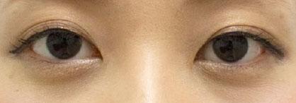 クマ とり の 目の下 目の下のくま(クマ)の原因・種類と解消のエイジングケア