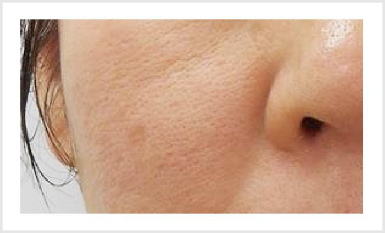 の レーザー 鼻 毛穴 【検証】CO2フラクショナルレーザーで鼻の毛穴(いちご鼻)への効果は?