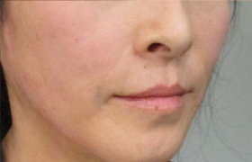 れい 除去 ほう 線 ほうれい線対策特集|ヒアルロン酸注入でほうれい線を消す・レーザー治療の美容整形は品川美容外科【全国版】